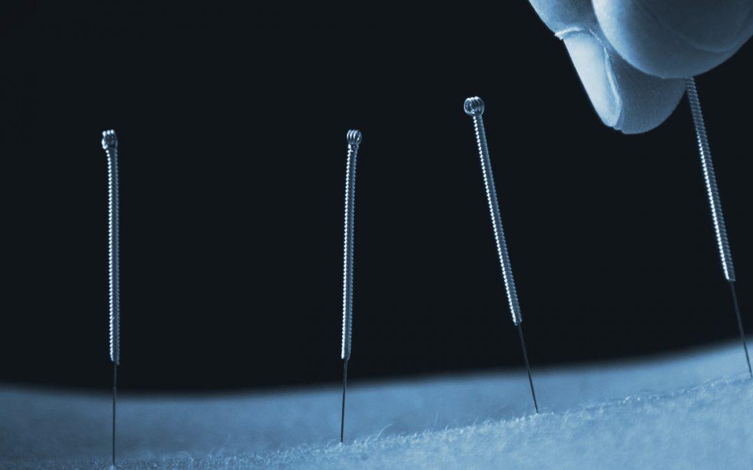 Akupunktur: Woran erkennen Sie eine gute Behandlung?